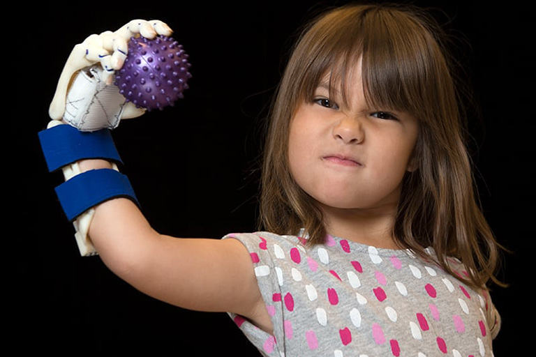 Hailey with her prosthetic hand holding a ball