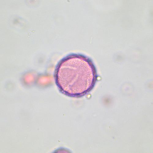 Eschscholzia (Poppy)