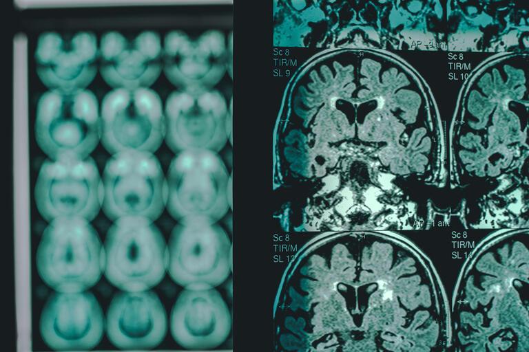 MRI scan of a brain with Alzheimer's disease.